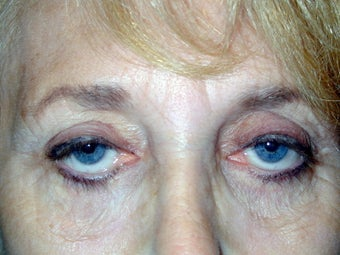 Upper Eyelid Ptosis Repair And Blepharoplasty; Lower Eyelid Blepharoplasty And Ectropion Repair; Endoscopic Brow Lift before 239201