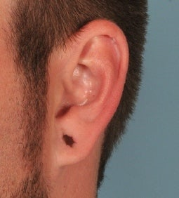 Earlobe Gauge Repair before 589635