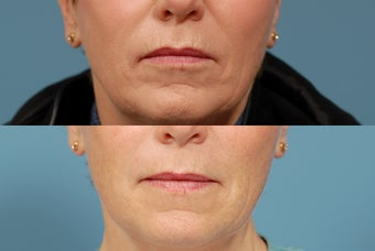Sculptra  area around mouth before 409236