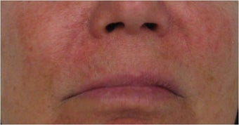 Juvederm to nasolabial folds before 77468