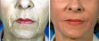 Chemical Peel before 652168