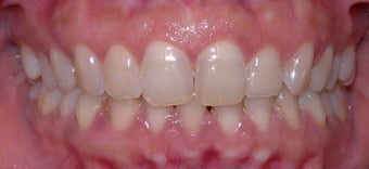 Invisalign after 254578