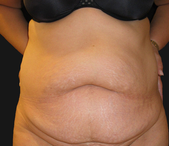 Abdominoplasty before 458935