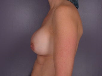 Breast Revision Surgery  before 307257