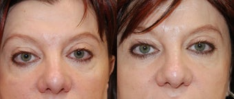 Silikon-1000 to correct lower eyelid irregularities after blepharoplasty before 127327