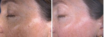 IPL for hyperpigmentation and freckles on face before 6604