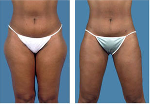 Liposuction on an African-American female, age 36 before 6790