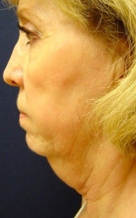 Neck liposculpture before 374887