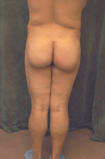 Women's Buttocks Augmentation  518138