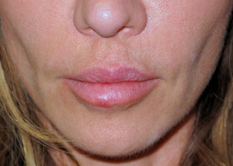 lip lift before 580971