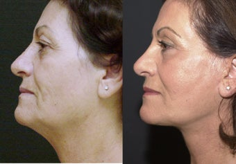 Face Neck Lift before 251729