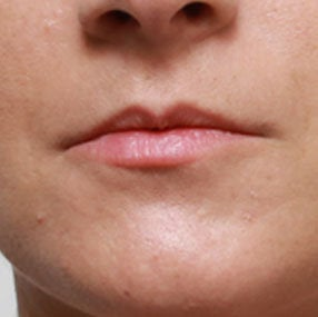 Non Surgical Lip Enhancement before 549863