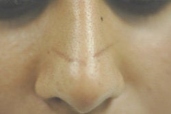 Scar Removal  before 145655