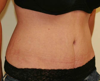 Abdominoplasty (Tummy Tuck) and Breast Augmentation after 216688