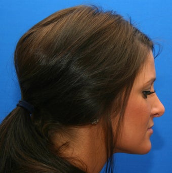 Rhinoplasty (nose job) after 532519
