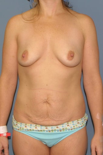 Mommy Makeover Breast augmentation and tummy tuck before 539084