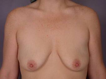 Breast Lift / Breast Augmentation before 291188