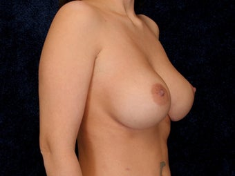 Breast Implants after 322028