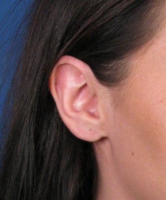 Earlobe Gauge Repair after 446438