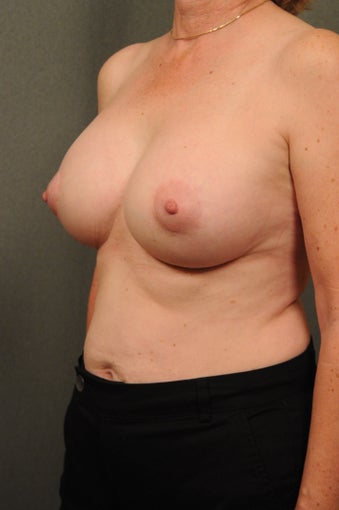Breast Augmentation with Silicone Implants & Mastopexy 604290