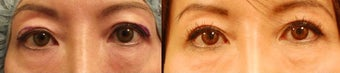 Upper eyelid surgery before 489315