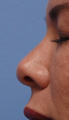 Non-Surgical Rhinoplasty before 182604