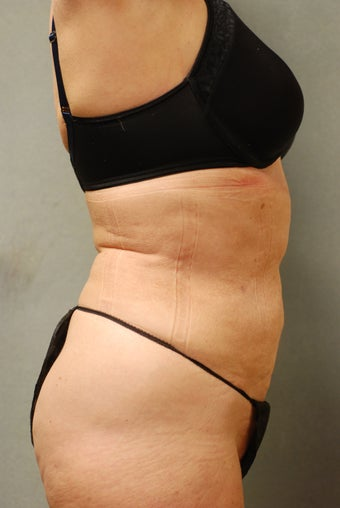 SmartLipo™  65 Yr Old Female  Abs/upper & Lower Flanks, Waist 451399