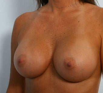 Breast Augmentation after 260148