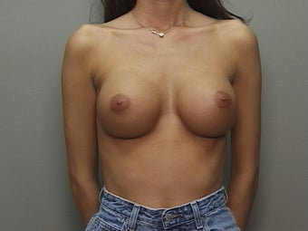 Replacement Of Breast Implants With Larger Implants