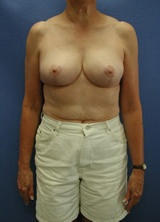 Breast Reduction Surgery (No Implants) after 124962