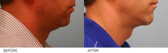 Chin Implant and Neck Liposuction before 232985
