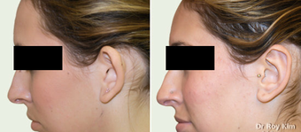 Otoplasty-Ear Surgery before 277814
