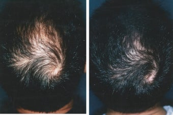 Medical treatment for hair loss (no surgery) before 369180