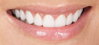 Gum re-contouring and porcelain veneers after 486447