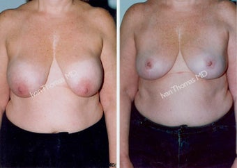 Implant removal and Breast lift before 243648