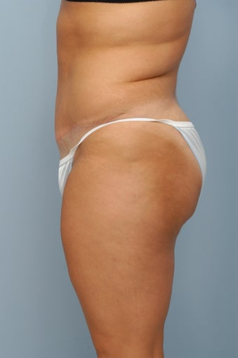 Tummy Tuck after 367308