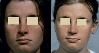 Revision Rhinoplasty before 127039