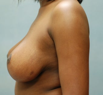 Breast Reduction after 221283