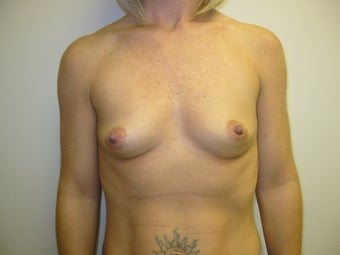 Breast Augmentation before 275986