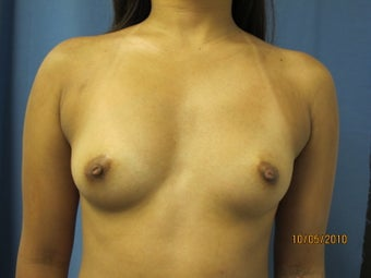 Breast Augmentation before 295155