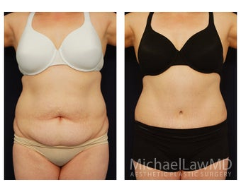 Abdominoplasty - Tummy Tuck before 396085