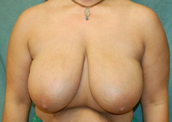 Breast Reduction before 274558