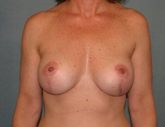 Breast lift after 334360