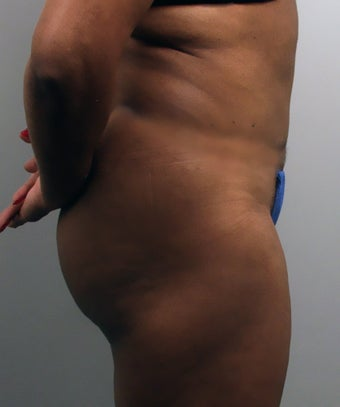 Tummy Tuck after 273261