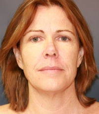 Facelift and laser resurfacing before 285972