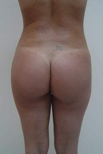 Buttock augmentation after 88871