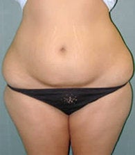 Liposuction before 479091