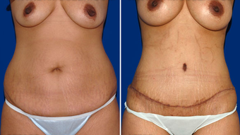 Tummy Tuck before 495846