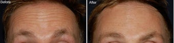Botox for forehead lines before 97867