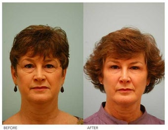 Fat Transfer/Fat Grafting/Facial Rejuvenation before 136355